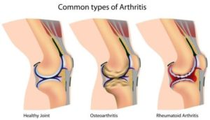 Arthritis, Bible, joints, science